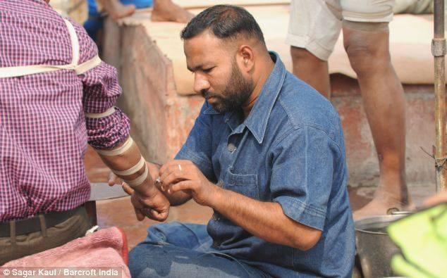 Лечение кровопусканием на улицах Индии (11 фото)