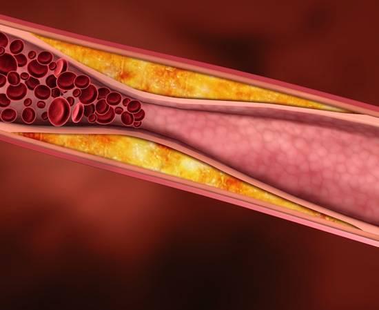На самом деле холестерин почти не влияет на болезни сердца и сосудов