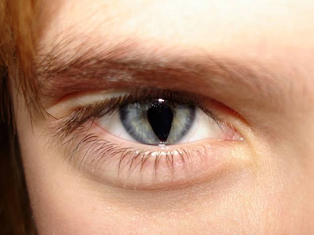 У некоторых людей зрачки глаз похожи на замочные скважины