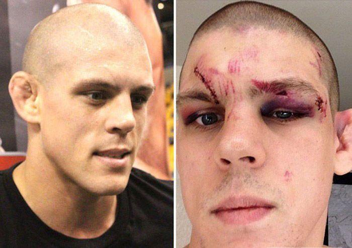 Лица бойцов UFC до и после боя (15 фото)