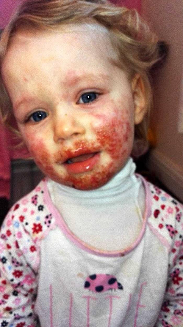 Кровавый герпес: Вот к чему может привести поцелуй родственника (7 фото)