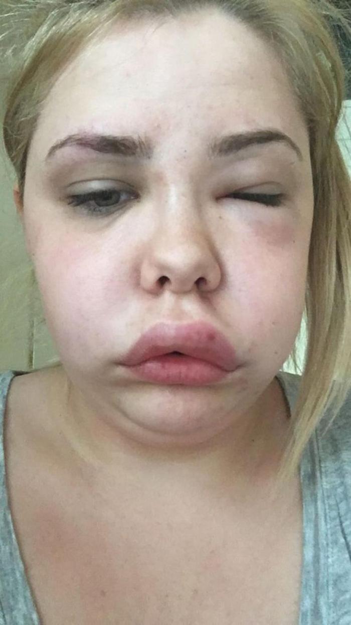 При переживаниях лицо и шея девушки увеличиваются вдвое (7 фото)