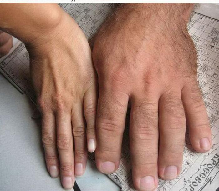 Рука чемпиона по армреслингу (2 фото)